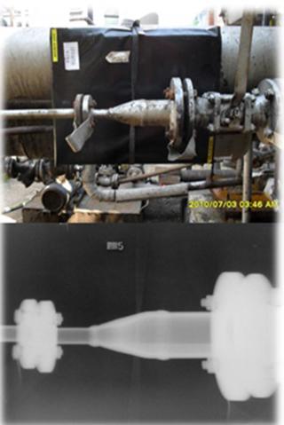 Radiografia-Computerizata
